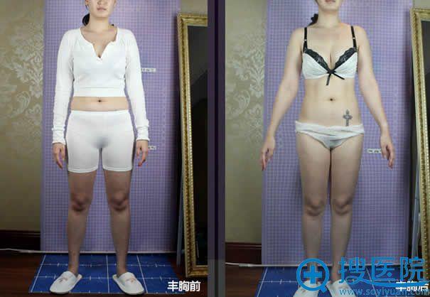 北京丽都APSC自体脂肪丰胸案例