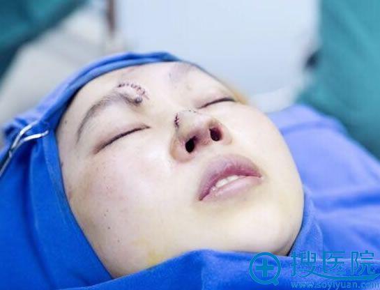 江华教授为小蓉二次鼻再造手术结束照片
