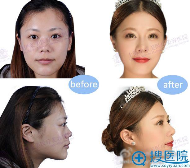 上海伊莱美鼻综合整形效果对比图