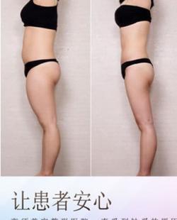 日本高须整形吸脂效果怎么样?高须克弥院长吸脂案例突显实力