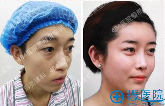 自体脂肪全脸填充1个月前后对比图