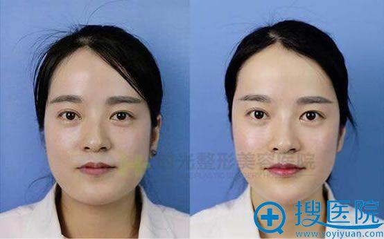重庆时光注射玻尿酸前后效果对比照片