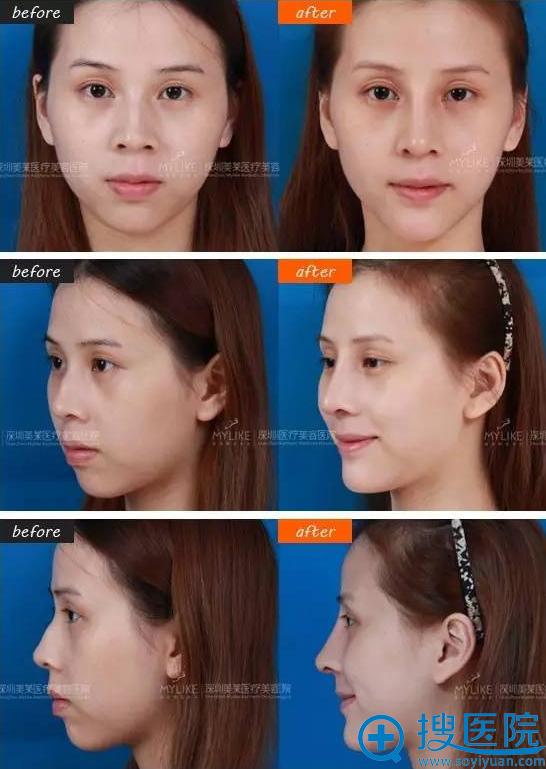 找梁晓健做韩式隆鼻前后对比图