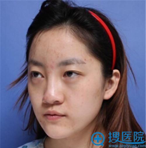 在韩国will做鼻翼缩小手术前的照片