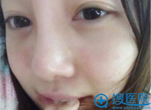 在韩国will做鼻翼缩小术后两个月