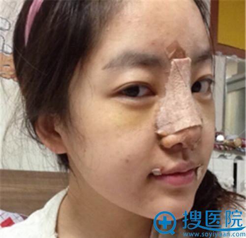 在韩国will做完鼻翼缩小手术侧面照片