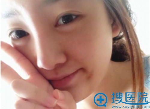 在韩国will做完鼻翼缩小手术一个月