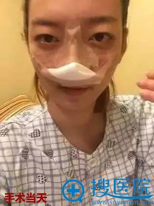 在新疆华美找王超杰做隆鼻术后当天照
