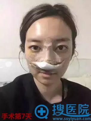 在新疆华美做综合隆鼻术后第7天恢复照