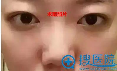 找王超杰做鼻整形前照片