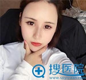 在北京田永成整形医院做隆鼻术后25天
