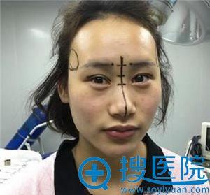 北京田永成给做的隆鼻和双眼皮手术方案