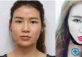 【案例】她们在武汉美基元做完隆鼻后几个月到几年恢复效果跟进