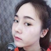 分享做硅胶假体隆鼻手术前后对比照片 选的北京丽都刘宁主刀