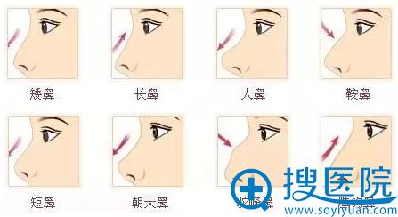 过鼻综合改善范围