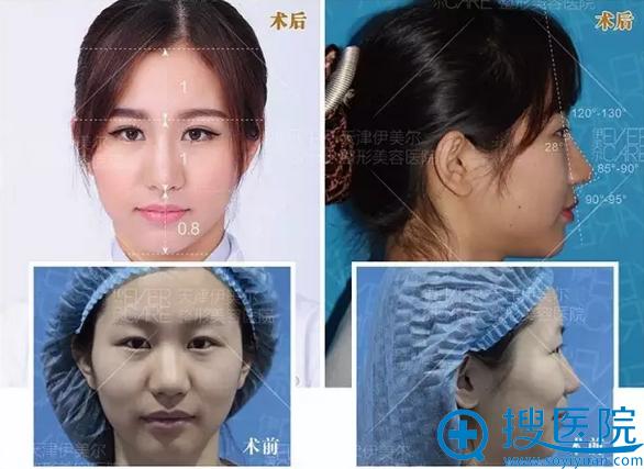 鼻综合术前术后对比照