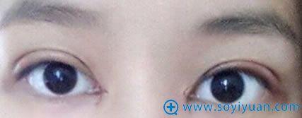在上海华安割双眼皮第五天案例图