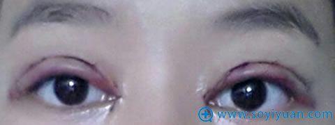 在上海华安割双眼皮第二天