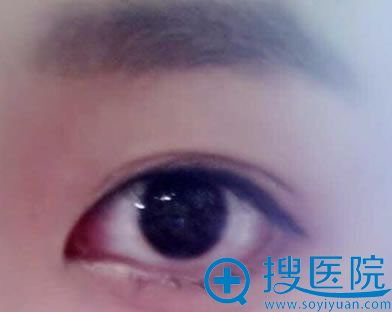 化妆贴出来的双眼皮效果图