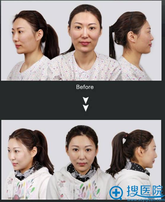 颧骨+下颌角手术前后对比照