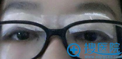 在上海华安割双眼皮第一天