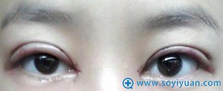 在上海华安割双眼皮第三天