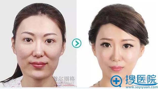 上海首尔丽格颧骨+下颌角手术前后对比照