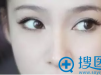 【亲身经历】在深圳联合丽格整形医院找裴菁割双眼皮1个月啦