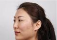 【亲身经历】花12万在上海首尔丽格找朴兴植做颧骨+下颌角手术