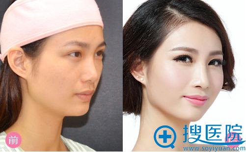 广州曙光刘杰伟硅胶隆鼻案例