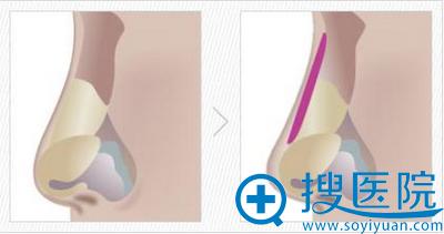 硅胶假体放置在鼻背的筋膜层下垫高鼻梁示意图