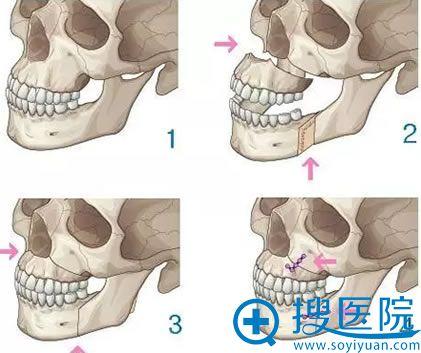 凸嘴矫正手术示意图