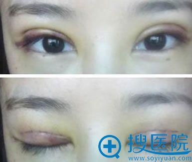 双眼皮术后过宽恢复图