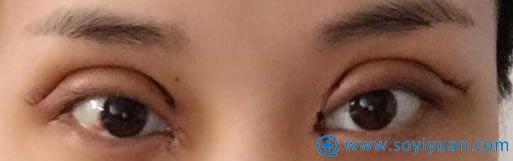 双眼皮术后过宽示意图
