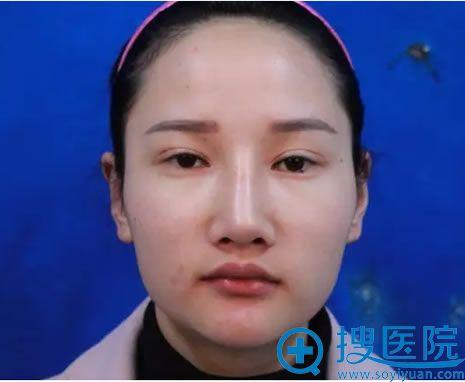 在上海华美做整形前的照片