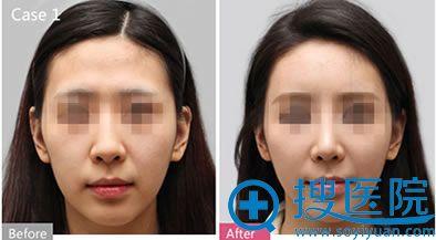 上海华美面部脂肪填充前后对比图