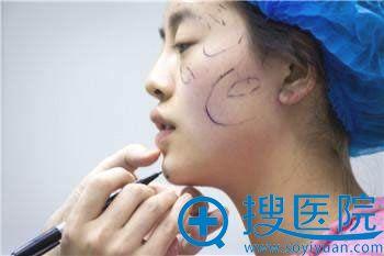 北京丽都高超为爱美者设计面部填充