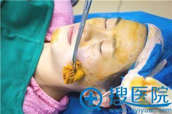 北京丽都高超做自体脂肪填充面部手术