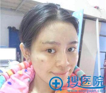 北京丽都做面部脂肪填充术后第7天