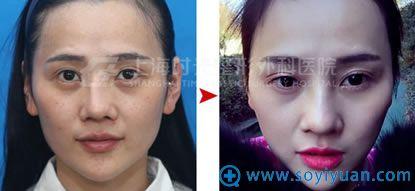 上海时光鼻整形修复案例对比图
