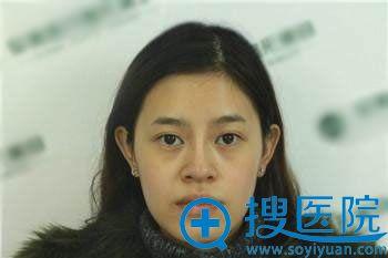 在北京丽都做自体脂肪填充面部前照片