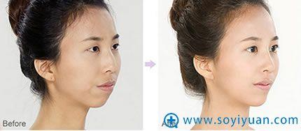 上海华美鹰沟鼻整形案例对比
