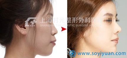上海时光隆鼻+玻尿酸丰下巴对比案例