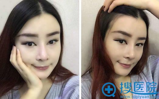 在上海华美做隆鼻+双眼皮+面部脂肪填充术后2个月