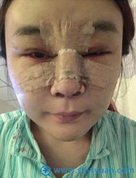 在上海华美做隆鼻+双眼皮+面部脂肪填充术后照