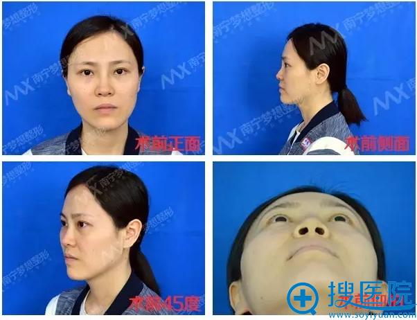隆鼻修复前各角度照片