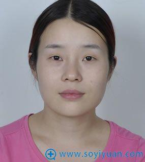 在上海华美整形医院面部整形前照片