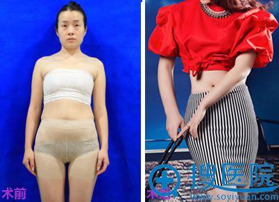 在上海华美做塑形前后对比图