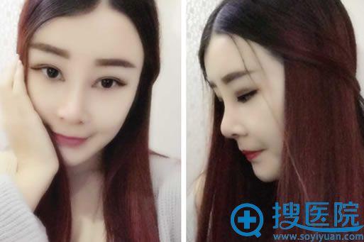 在上海华美做隆鼻+双眼皮+面部脂肪填充术后25天