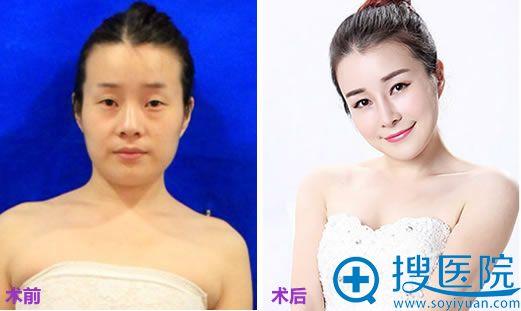 在上海华美做隆鼻+双眼皮+面部脂肪填充术前后对比照